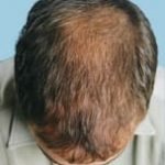 hair transplant surgery after