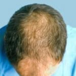 hair transplant surgery before