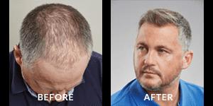 Darren Gough Before After Hair Loss