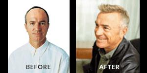 Greg Matthews Hair Loss