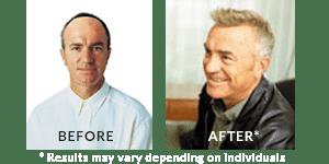 Greg Matthews Hair Loss Before After