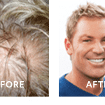 Shane Warne Before and After Hair Loss