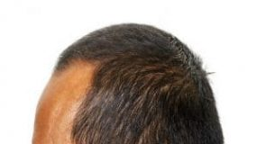 How to Get Rid of A Widows Peak