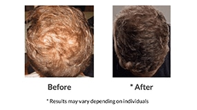 Stem Cell Hair Technology Factors Cost