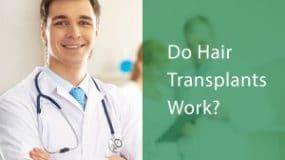 Do Hair Transplants Work?
