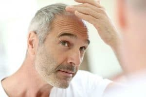 Hair Thinning in Front