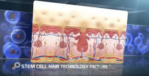 Stem Cell Treatment New Zealand