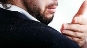 Dandruff And Hair Loss