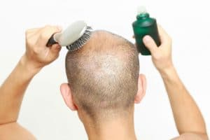 Does PRP Work For Hair Regrowth? We Discuss the Results
