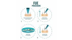 FUE Versus FUT Hair Transplants featured
