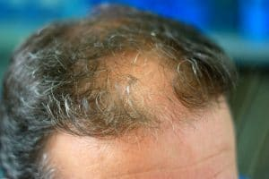 Hair Implants Cost Hair Loss Replacement Surgery Procedure