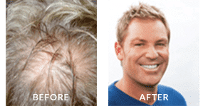 Shane Warne Before After Hair Loss 2